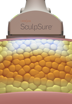 Sculpsure Treatment in process
