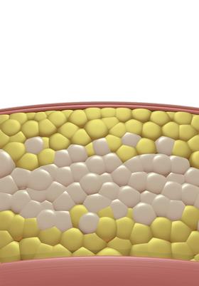 Destruction of fat cells post treatment